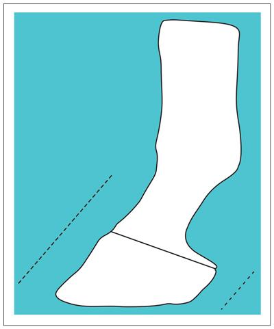 Hoof diagram