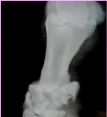 Radiograph of a Pastern Fracture